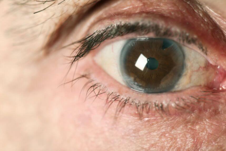 ¿El por qué hoy es el día del Glaucoma?